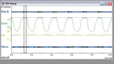 Figure 1. A joint vibration analysis of a patient without vibration episodes and joints functioning within normal limits.