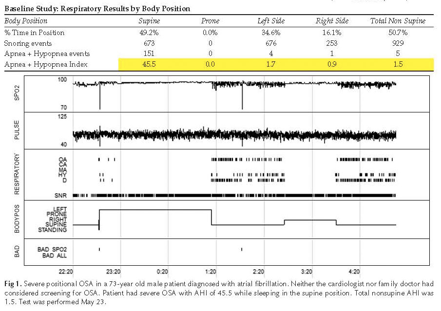 Fig 1CS1 Positional Apnea in a 73 Year Old Male with Atrial Fibrillation