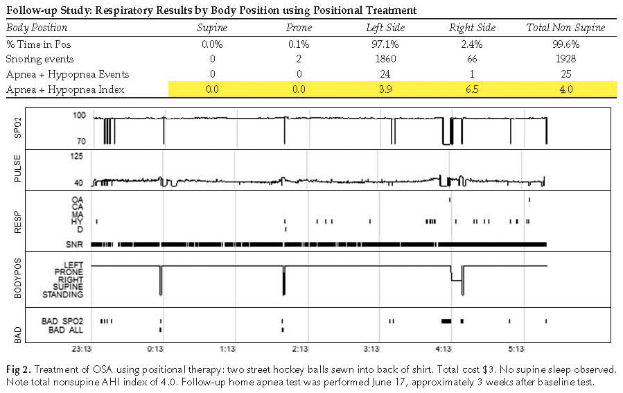 Fig 2CS Positional Apnea in a 73 Year Old Male with Atrial Fibrillation