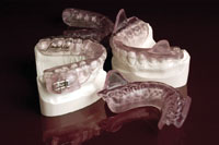 Figure 4. This appliance (SomoDENT [SomnoMED]) is an excellent example of the type of a titratable, durable, mandibular advancement splint that can be used in the treatment of diagnosed sleep apnea when indicated.