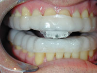 Figure 6. The Thorton Adjustable Positioner (TAP), is another excellent appliance used in Dental Sleep Medicine. This is an example of the TAP III.