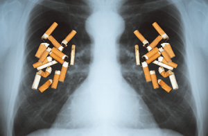 lung-smoking-copd