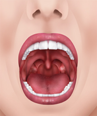 mouthAirway