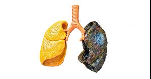 smoky-lung